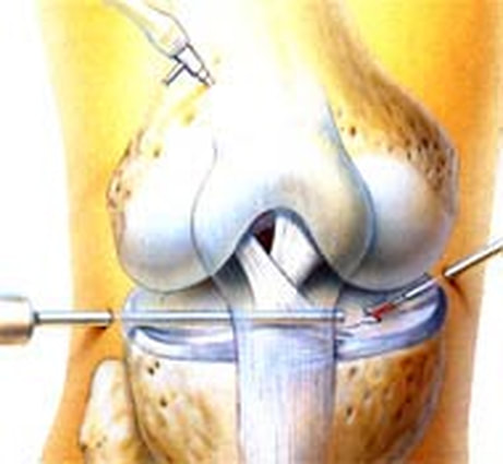 knee surgery medical illustration by Walter Stuart.
